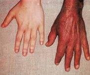 Окраска кожи при гемохроматозе