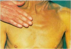Желтуха является признаком целого ряда заболеваний