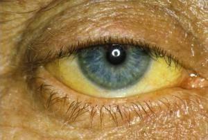 Излишнее скопление билирубина вызывает окрашивание склер и слизистых в характерный желтый цвет