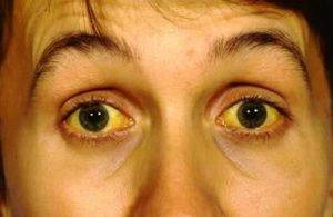 Желтушность кожи и глаз