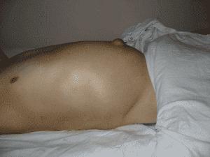 Гепатома печени