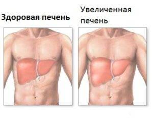 Лечение гемангиомы печени
