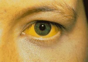 Симптомы желтухи
