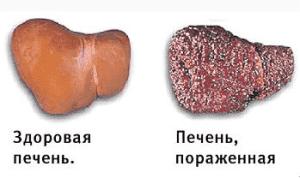 Больная печень