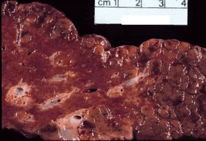 Печень, пораженная вирусом гепатита В