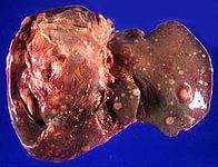 Метастазы в печень при раке почки