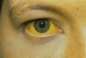 Пожелтение кожи и белков глаз