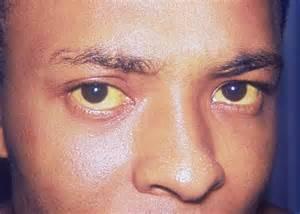 Одно из проявлений желтухи - пожелтевшие глазные белки