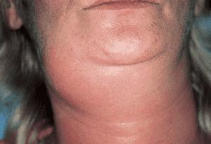 Увеличиваются околоушные слюнные железы. Симптом также называют в народе «синдромом хомячка»
