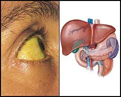 Признаки гепатита