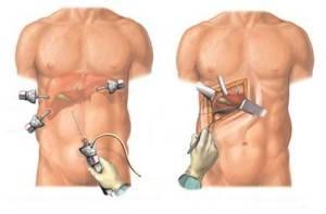 хирургическое лечение холецистита