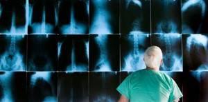 На рентгеновском снимке врач сможет определить состояние вен в области пищевода