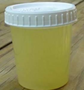 При гепатозе печени цвет мочи приобретает белесоватый оттенок