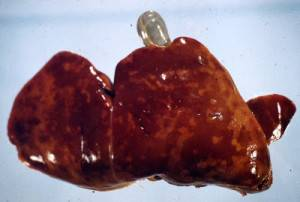 Перипортальный фиброз имеет основание глистного поражения