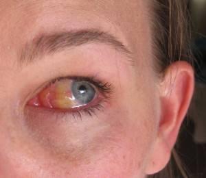 Один из симптомов заболевания - пожелтение склер глаз