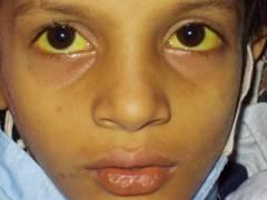 Симптомы болезни - пожелтение кожи и белков глаз