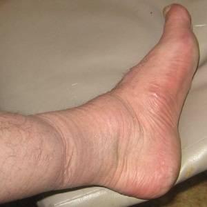 Симптомы третьей стадии заболевания - отеки – происходит нарушение оттока жидкости из-за того, что сосуды сдавливаются.