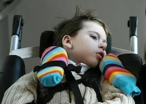 Промедление лечения опасно, как может привести  к параличу, ДЦП, полной или частичной неподвижности