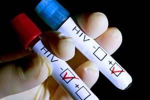 Проверка на ВИЧ - инфекцию