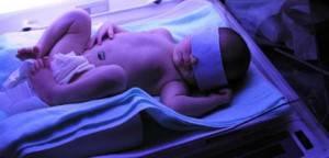 Фототерапия новорожденных