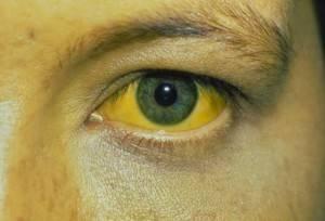 Пожелтение склер - одно из проявлений воспалении печени