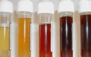 Цвет мочи при заболеваниях печени