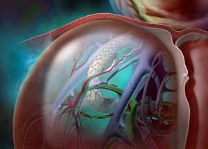 Цирроз печение с  синдромом портальной гипертензии