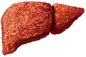 Цирроз печени - это заболевание, которое до сих пор не поддается окончательному лечению