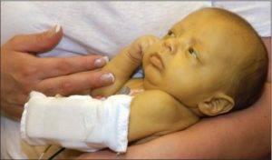 Врожденный гепатит