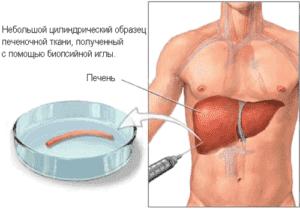 Пункционная биопсия