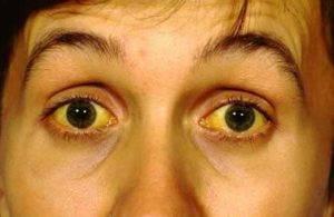 Проявляется функциональная гипербилирубинемия желтушным оттенком кожных покровов и глазных яблок