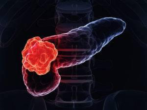 Опухолевые образования поджелудочной железы