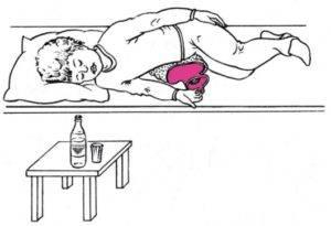 Слепое зондирование желчного пузыря