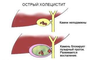 Острая форма холецистита