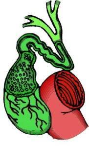 Хронический холангит