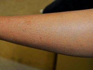 Сухость кожи